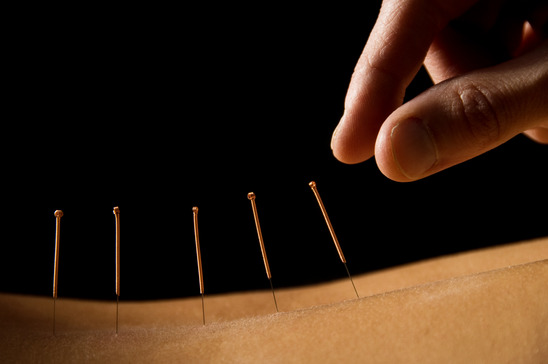 It May Be Time To Explore Acupuncture As Part Of Your Weight Loss Plan